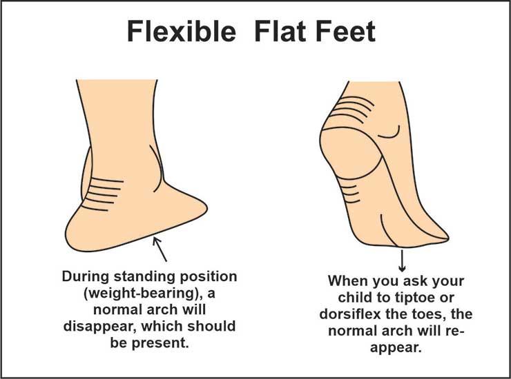image showing flexible flat feet and flexible pes planus