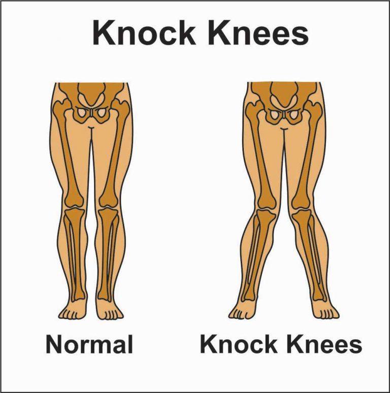 Image showing knock knees 9genu valgum)