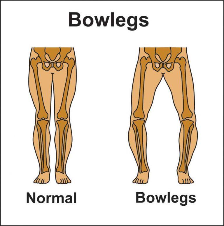 image showing bow legs (genu varum)