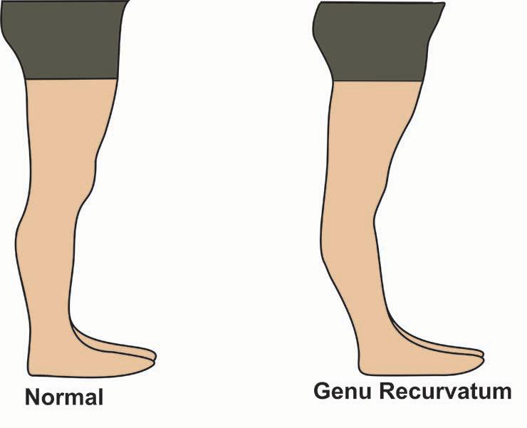 genu recurvatum (hyperextension of the knee)
