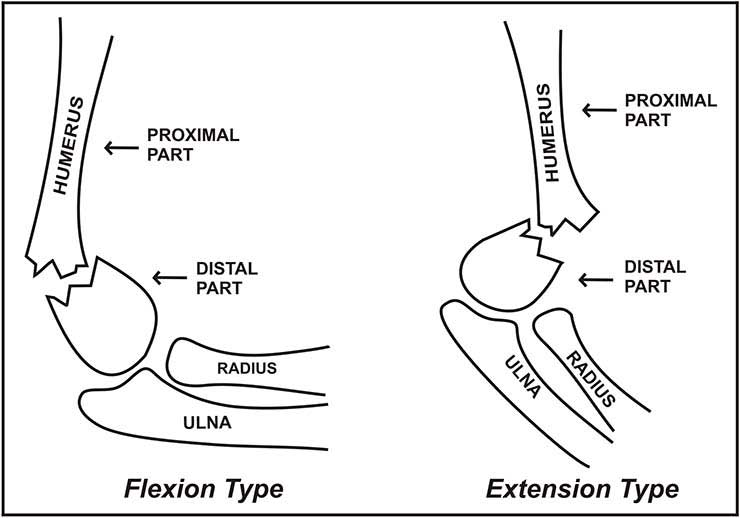 Image show flexion and extension type supracondylar fracture of humerus