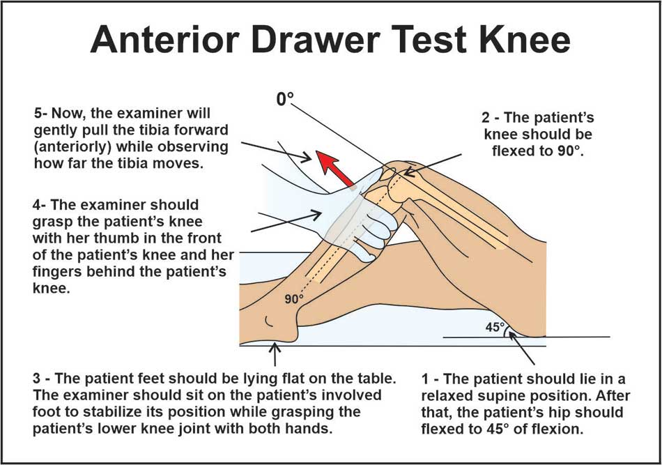 Image showing anterior drawer test knee (infographics)