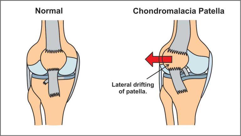 image showing chondromalacia patella (lateral drifting of patella)