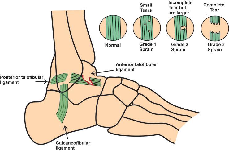 Anterior talofibular ligament tear in ankle drawer test ankle