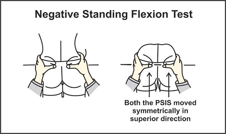 Image showing standing flexion test (negative)