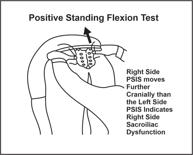 image showing standing flexion test (positive)