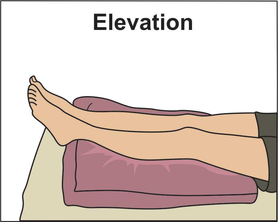image showing elevation of legs