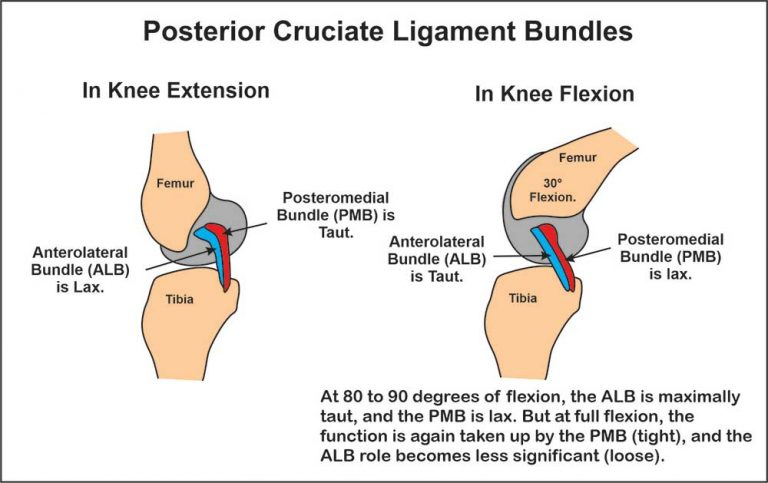 image showing posterior cruciate ligament (PCL) bundles anatomy