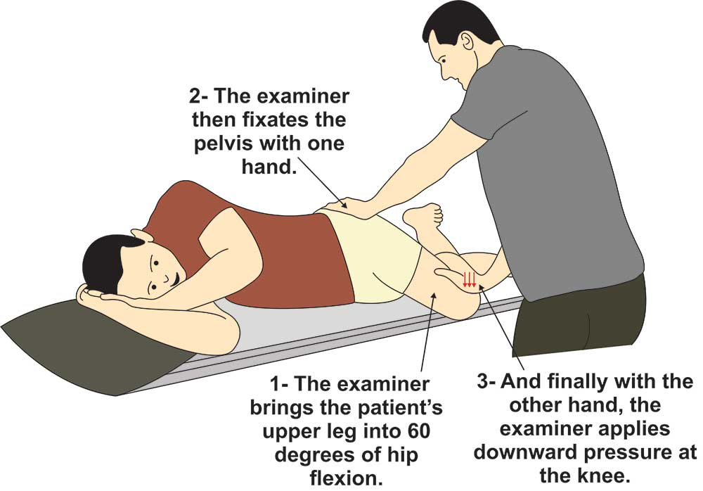 image showing procedure for performing piriformis test