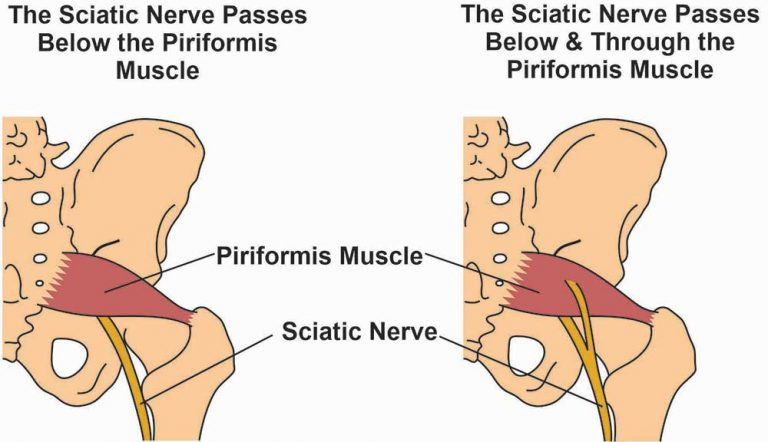 one part showing the sciatic nerve passes below the piriformis muscle and other part showing the sciatic nerve passes below and through the piriformis muscle