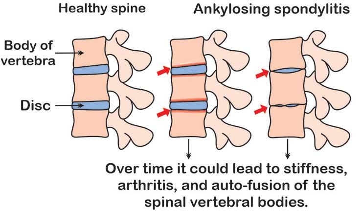 ankylosing-spondylitis-flatback-syndrome