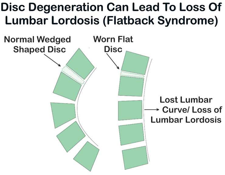 loss-of-lumbar-lordosis-flatback-syndrome