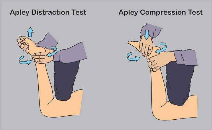 apley-test
